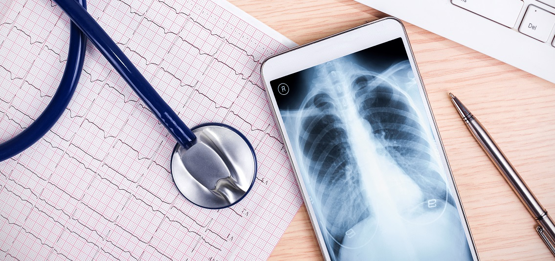 online medical service:X-ray and smartphone with stethoscope